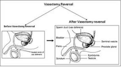 Best Vasectomy Reversal Doctor NYC 2013 p02