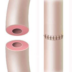 Vasectomy reversal